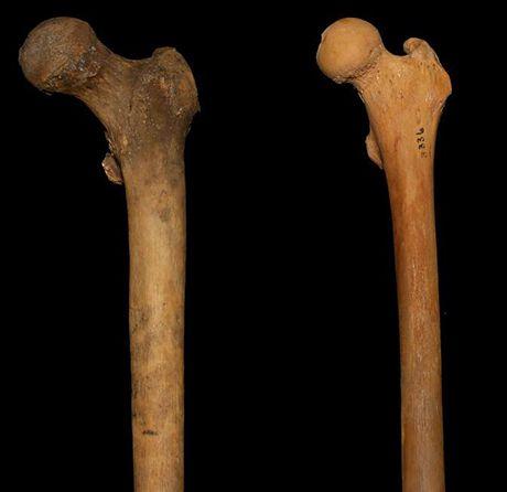 Cổ xương đùi ảnh hưởng tới khả năng Squat sâu