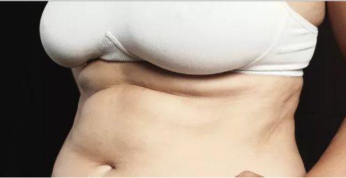 Mỡ dạng sợi - Fibroud Fat