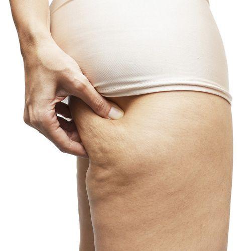 Mỡ rắn - Cellulite