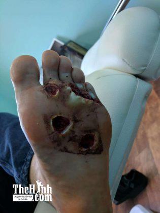 Đi chân đất trong phòng tập gym bị nhiễm virut ăn thịt người