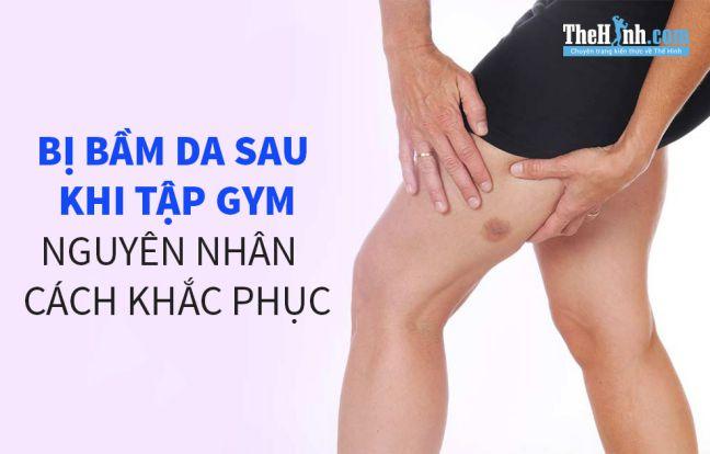 Bị vết bầm trên da sau khi tập gym, nguyên nhân và cách xử lý