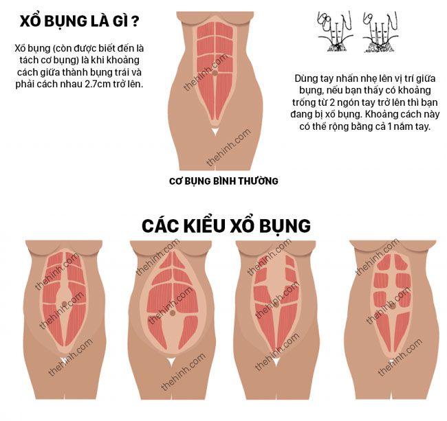 Xổ bụng sau sinh là gì ? Khắc phục tách cơ bụng sau sinh như thế nào ?