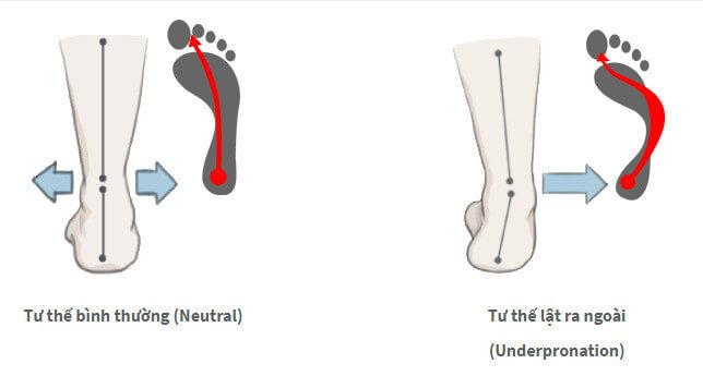 Overpronation - Lệch trong