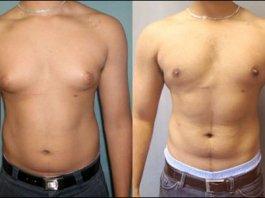 Cách khắc phục vú to ở nam giới hiệu quả nhất mà bạn sẽ muốn biết