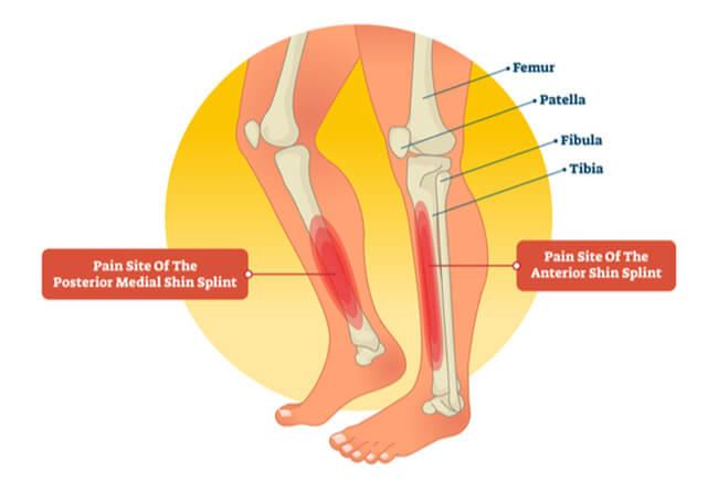 Đau xương cẳng chân (Shin splints)